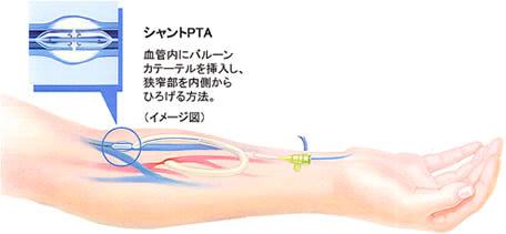 シャントPTAのイラスト 血管内にバルーンカテーテルを挿入し、狭窄部を内側からひろげる方法。